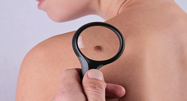 Is It Skin Cancer? 6 Usual Signs You Need To Be Aware Of!