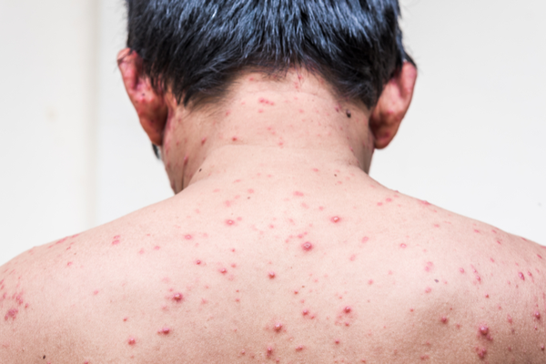 Masoor benefits in Chickenpox