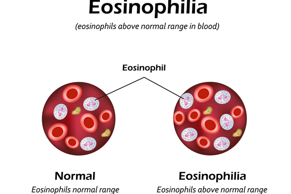 Eosinophilia home remedies