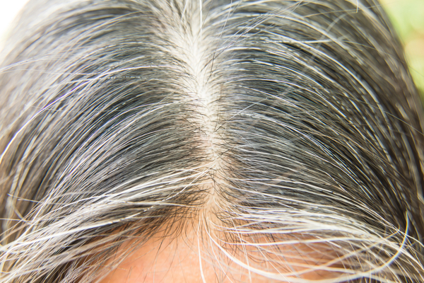Chhareela Benefits and Uses in white hair problem
